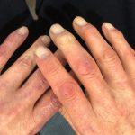 足指や手に多い「しもやけ」の症状は?かゆくないこともある?写真も紹介!