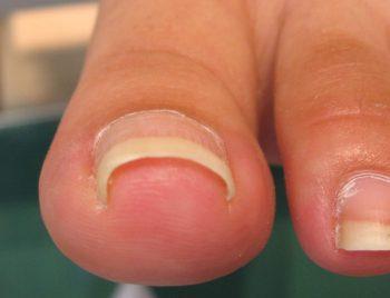 巻き爪の状態2