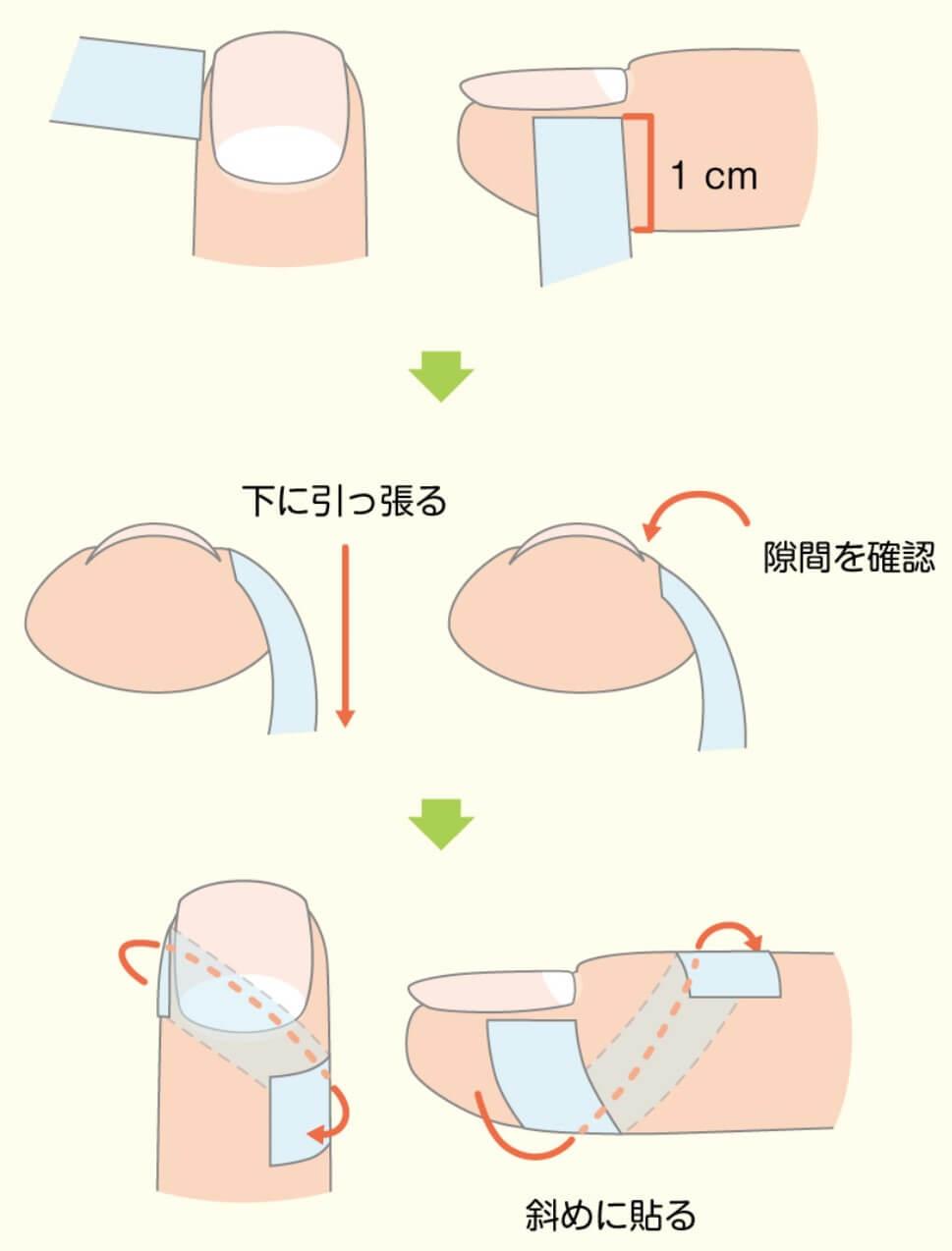 巻き爪の痛みをテーピングで和らげる方法
