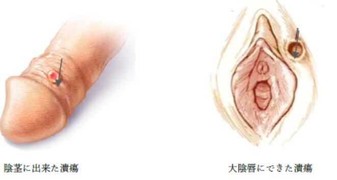 梅毒の症状である陰部のしこり