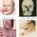 梅毒の末期の症状を画像を見ながら説明!脳や鼻に症状が出ることも?