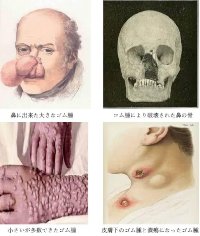3期梅毒のゴム腫の症状の画像